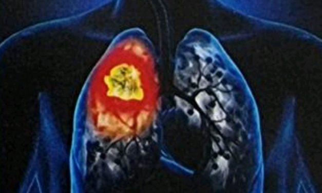 JU Bolnica za plućne bolesti i tuberkulozu Travnik: Dani otvorenih vrata 8.11-12.11.2021.